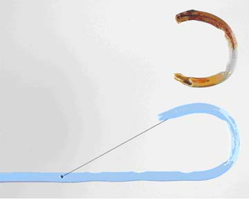 pigtail catheter removal instructions